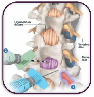 lumbar steroid injection weight gain